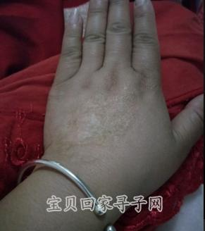 314636梅梅手部烫伤.png